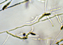 Micrograph of Rhizoctonia mycelium showing the classic hyphal branching. Link to photo information