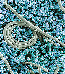 Scanning electron micrograph of Salmonella cells. Link to photo information