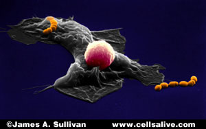 Photo: A macrophage, a lymphocyte and Strep bacteria