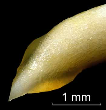Photomicrograph of peanut root tip