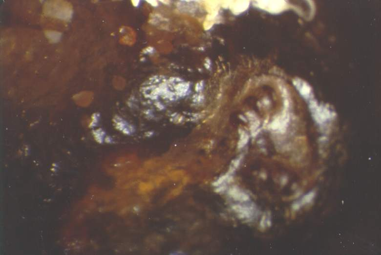 A varroa mite that has been trapped between the cocoon and the cell wall (as seen from above after removing the bee larva).