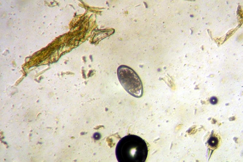 parasitic nematode worm
