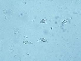Pyricularia Conidia