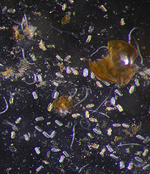 Nematode eggs and juveniles of the golden nematode, Globodera rostochiensis: Click here for full photo caption.