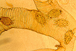 A bee trachea infested with mites: Click here for full photo caption.