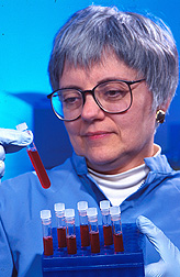 Chemist Norberta Schoene prepares blood samples for analysis.