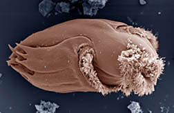 Scanning electron micrograph of Ophryoscolex protozoan.  Link to photo information
