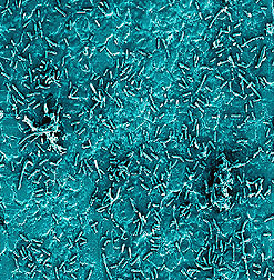 Bacteria on stainless steel surface--500x