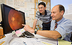 Epidemiologist Chiu (left) and biochemist review an image of the retina of a patient with macular degeneration, seen as the yellow spotting in the macula (the darker area in the center of the retina): Click here for full photo caption.