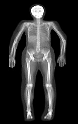 The dual energy x-ray (DXA) bone mineral density scan shows the skeleton of a 72-year-old woman without any known disease: Click here for full photo caption.