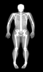 The dual energy x-ray (DXA) bone mineral density scan shows the skeleton of a 24-year-old female athlete without any known disease: Click here for full photo caption.