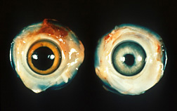 Left: Normal chicken eye. Right: Eye with lesions and irregular pupil caused by Marek's disease: Click here for photo caption.