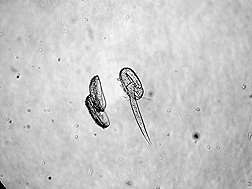 Microscope image of a juvenile pale cyst nematode (right) emerging from an egg: Click here for photo caption.