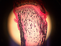 Cross-section of leg bone from a blueberry-fed rat as viewed with fluorescent microscopy. The black-stained areas are newly formed bone, and the pink and white areas are bone marrow: Click here for photo caption.
