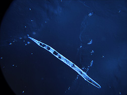 A second-stage juvenile of the root-knot nematode Meloidogyne incognita (about 1/3 millimeter long): Click here for photo caption.