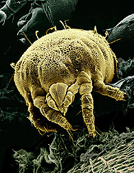 A yellow mite is shown among some fungi. Magnified about 850x. Click here for full photo caption.
