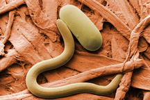 Photo: Soybean cyst nematode and egg. Link to high-resolution image.