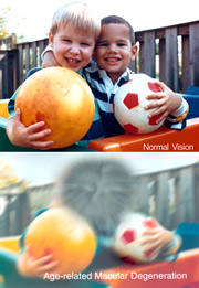 Two photos of a pair of young boys, each holding a ball. One scene is normal, but lower scene is distorted to simulate how it might be viewed by a person with age-related macular degeneration.