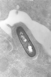 Electron micrograph of a Listeria bacterium in tissue.