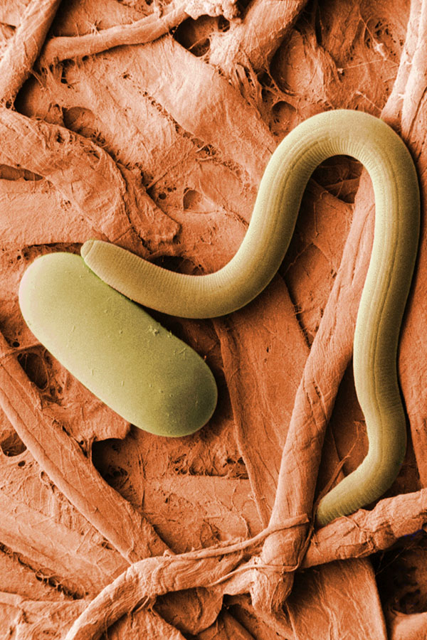 A nematode and its egg