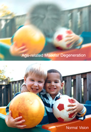 Two photos of a pair of boys. The images simulate AMD-related vision loss (top photo) and normal vision.