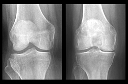 Photo: X-rays of a healthy knee and an osteoarthritic knee. Link to photo information